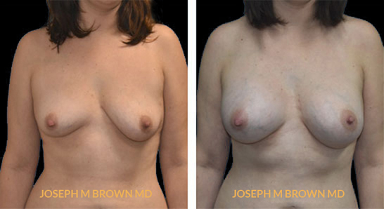Patient 04 Front Side View Breast Augmentation Tampa Aesthetic & Plastic Surgery