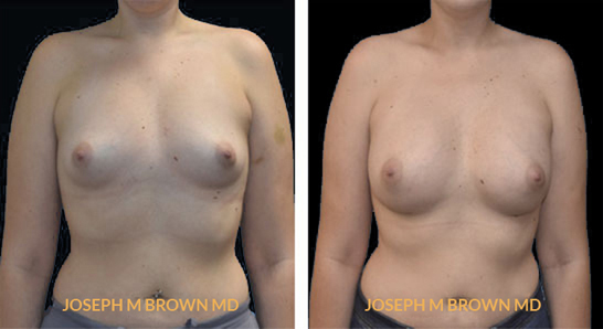 Patient 05 Front Side View Breast Augmentation Tampa Aesthetic & Plastic Surgery