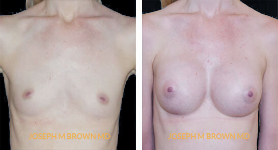 Patient 06 Front Side View Breast Augmentation Tampa Aesthetic & Plastic Surgery