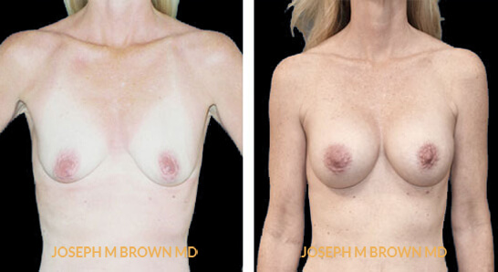 Patient 07 Front Side View Breast Augmentation Tampa Aesthetic & Plastic Surgery
