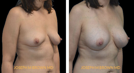 Patient 04 3/4th Right Side View Breast Augmentation Tampa Aesthetic & Plastic Surgery