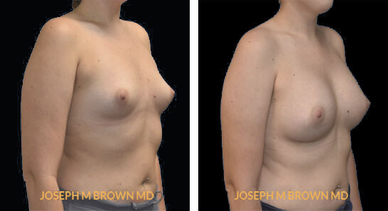 Patient 05 3/4th Right Side View Breast Augmentation Tampa Aesthetic & Plastic Surgery
