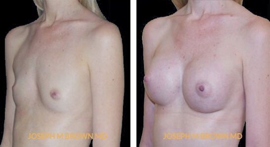 Patient 06 3/4th Left Side View Breast Augmentation Tampa Aesthetic & Plastic Surgery