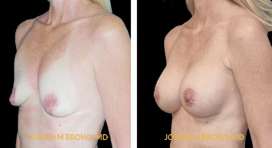 Patient 07 3/4th Left Side View Breast Augmentation Tampa Aesthetic & Plastic Surgery