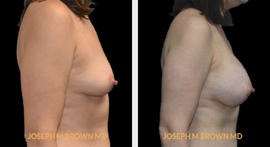 Patient 04 Right Side View Breast Augmentation Tampa Aesthetic & Plastic Surgery