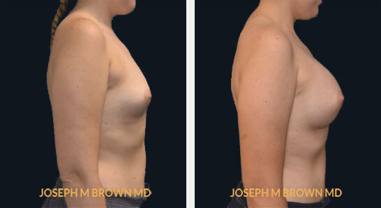 Patient 05 Right Side View Breast Augmentation Tampa Aesthetic & Plastic Surgery
