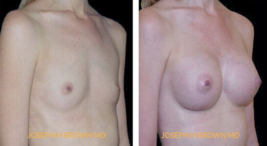 Patient 06 3/4th Right Side View Breast Augmentation Tampa Aesthetic & Plastic Surgery