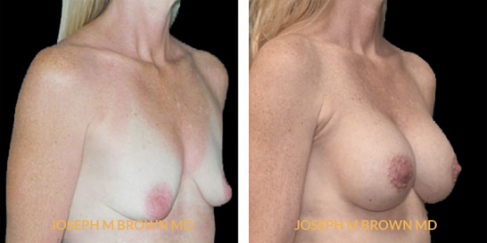 Patient 07 3/4th Right Side View Breast Augmentation Tampa Aesthetic & Plastic Surgery