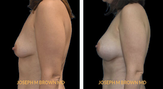 Patient 04 Left Side View Breast Augmentation Tampa Aesthetic & Plastic Surgery