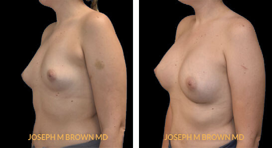 Patient 05 3/4th Left Side View Breast Augmentation Tampa Aesthetic & Plastic Surgery