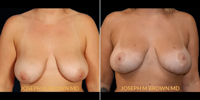 Patient 01 Front Side View Breast Lift Tampa Aesthetic & Plastic Surgery