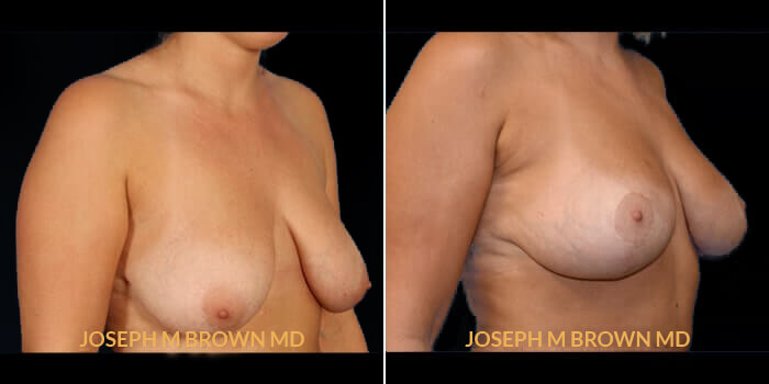 Patient 01 3/4th Right Side View Breast Lift Tampa Aesthetic & Plastic Surgery