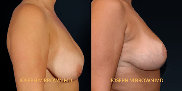 Patient 01 Right Side View Breast Lift Tampa Aesthetic & Plastic Surgery