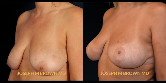 Breast Lift - before and after picture patient 02 3/4th left side view