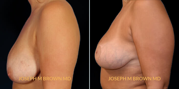 Patient 01 Left Side View Breast Lift Tampa Aesthetic & Plastic Surgery