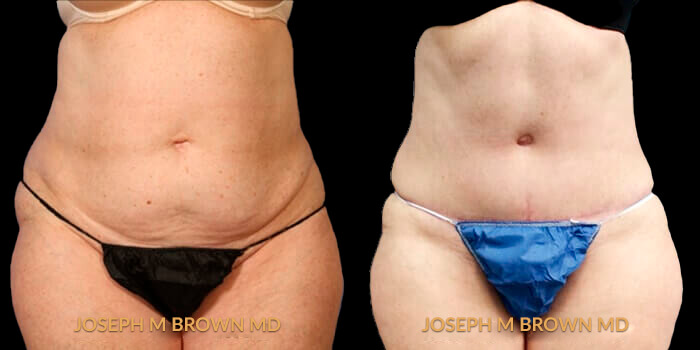 Patient 01 Front Side View Liposuction Tampa Aesthetic & Plastic Surgery