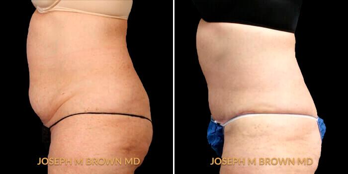 Patient 01 Left Side View Liposuction Tampa Aesthetic & Plastic Surgery