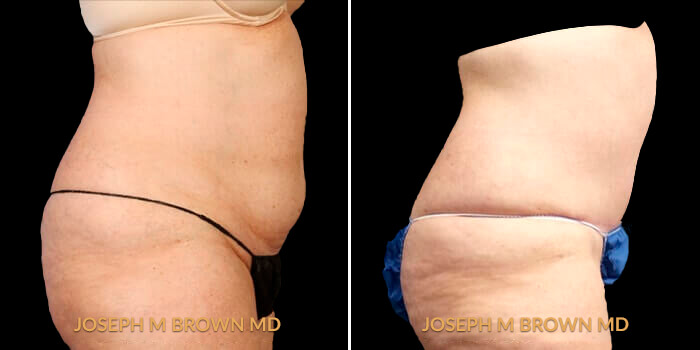 Patient 01 Right Side View Liposuction Tampa Aesthetic & Plastic Surgery