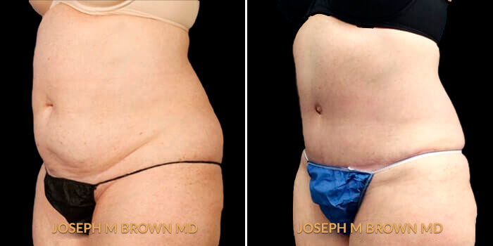 Patient 01 3/4th Left Side View Liposuction Tampa Aesthetic & Plastic Surgery
