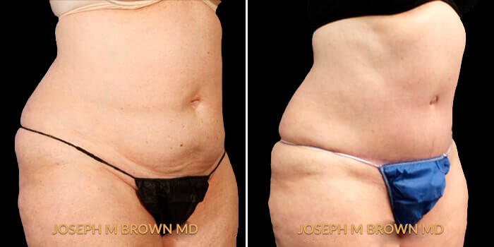 Patient 01 3/4th Right Side View Liposuction Tampa Aesthetic & Plastic Surgery