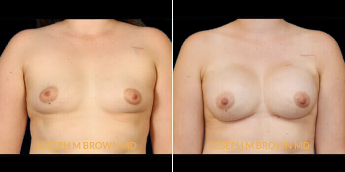 Patient 02 Front Side View Breast Reconstruction Tampa Aesthetic & Plastic Surgery