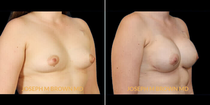 Patient 02 3/4th Right Side View Breast Reconstruction Tampa Aesthetic & Plastic Surgery