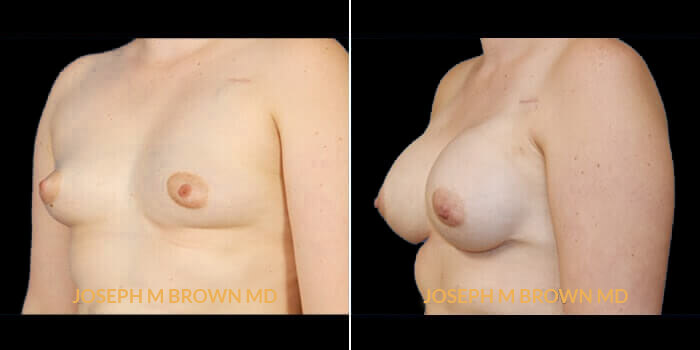 Patient 02 3/4th Left Side View Breast Reconstruction Tampa Aesthetic & Plastic Surgery