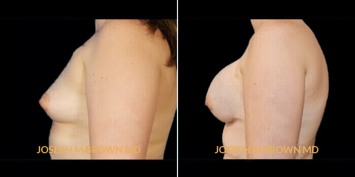 Patient 02 Left Side View Breast Reconstruction Tampa Aesthetic & Plastic Surgery