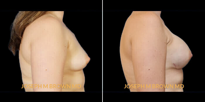 Patient 02 Right Side View Breast Reconstruction Tampa Aesthetic & Plastic Surgery