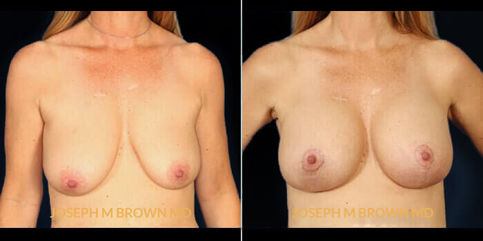 Patient 01 Front Side View Breast Asymmetry Tampa Aesthetic & Plastic Surgery