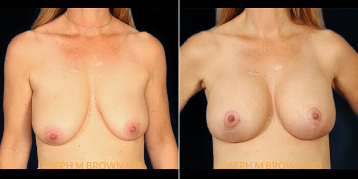Patient 02 Front Side View Breast Lift Tampa Aesthetic & Plastic Surgery
