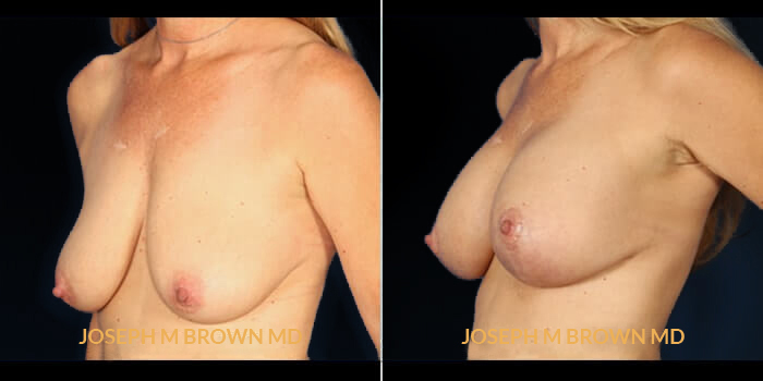 Patient 01 3/4th Left Side View Breast Asymmetry Tampa Aesthetic & Plastic Surgery