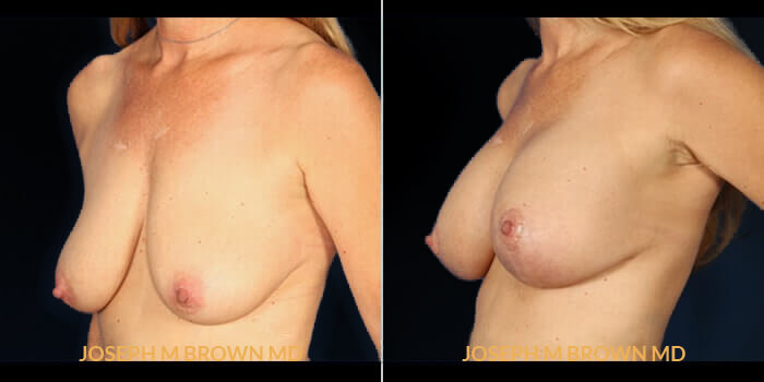 Patient 02 3/4th Left Side View Breast Lift Tampa Aesthetic & Plastic Surgery