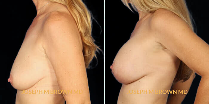 Patient 01 Left Side View Breast Asymmetry Tampa Aesthetic & Plastic Surgery