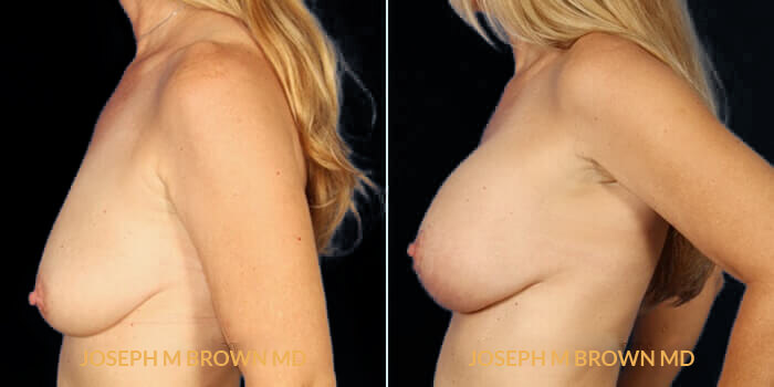 Patient 02 Left Side View Breast Lift Tampa Aesthetic & Plastic Surgery