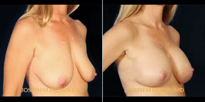 Patient 01 3/4th Right Side View Breast Asymmetry Tampa Aesthetic & Plastic Surgery