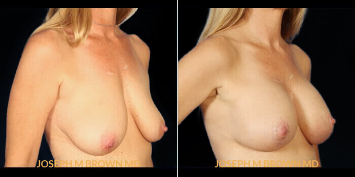 Patient 02 3/4th Right Side View Breast Lift Tampa Aesthetic & Plastic Surgery