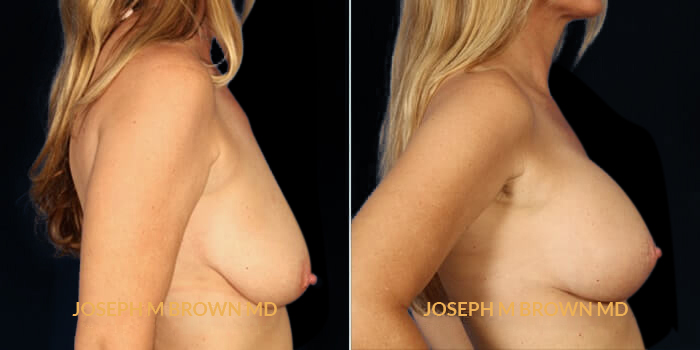 Patient 01 Right Side View Breast Asymmetry Tampa Aesthetic & Plastic Surgery