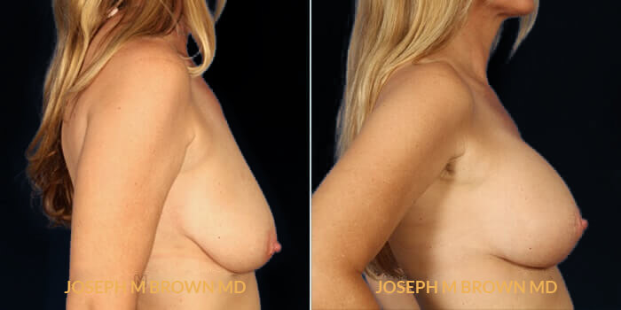 Patient 02 Right Side View Breast Lift Tampa Aesthetic & Plastic Surgery
