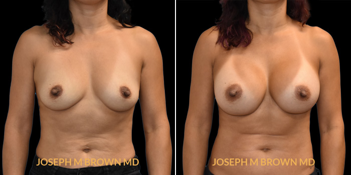 Patient 01 Front Side View Breast Augmentation Tampa Aesthetic & Plastic Surgery