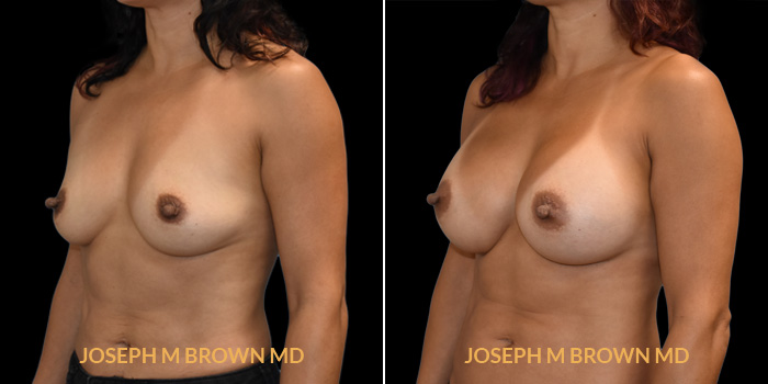 Patient 01 3/4th Left Side View Breast Augmentation Tampa Aesthetic & Plastic Surgery