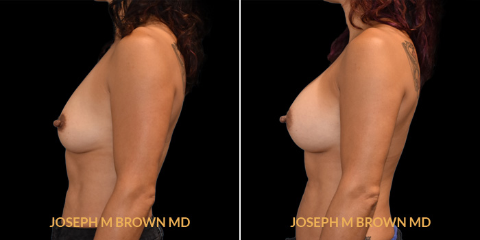 Patient 01 Left Side View Breast Augmentation Tampa Aesthetic & Plastic Surgery