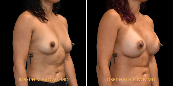 Patient 01 3/4th Right Side View Breast Augmentation Tampa Aesthetic & Plastic Surgery