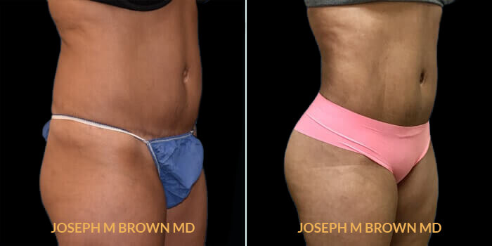 Patient 01 3/4th Right Side View Brazilian Butt Lift Tampa Aesthetic & Plastic Surgery