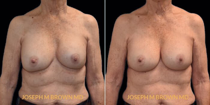 Patient 02 Front Side View Breast Asymmetry Tampa Aesthetic & Plastic Surgery