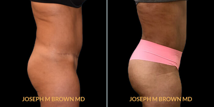 Patient 01 Right Side View Brazilian Butt Lift Tampa Aesthetic & Plastic Surgery