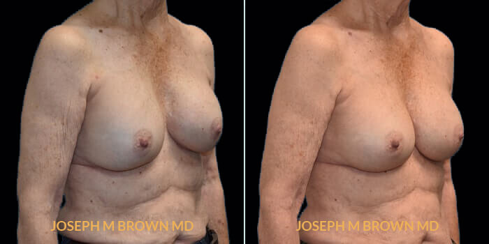 Patient 02 3/4th Right Side View Breast Asymmetry Tampa Aesthetic & Plastic Surgery