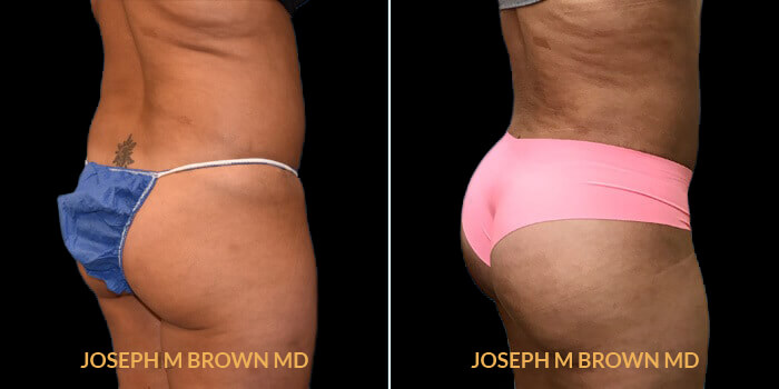 Patient 01 1/4th Right Side View Brazilian Butt Lift Tampa Aesthetic & Plastic Surgery
