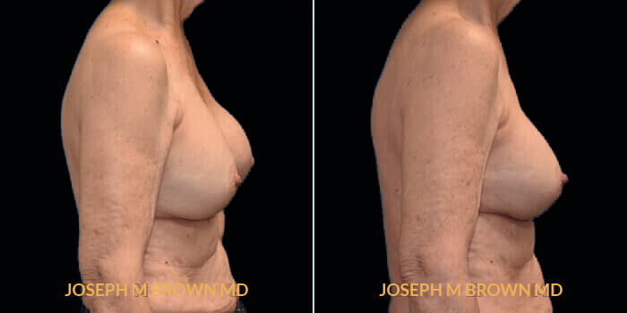 Patient 02 Right Side View Breast Asymmetry Tampa Aesthetic & Plastic Surgery