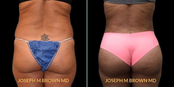 Patient 01 Back Side View Brazilian Butt Lift Tampa Aesthetic & Plastic Surgery